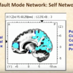 Default Mode Network — DMN
