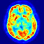 PET scan av hjernen.
